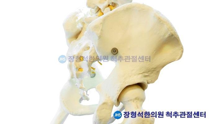 궁둥뼈 통증 '좌골신경통'의 원인과 치료법