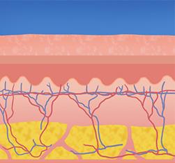 유캔비성형외과피부과의 IPL